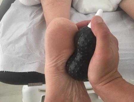 Tractant l'esperó calcani d'un pacient amb fisioteràpia