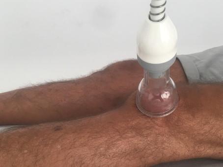 Treballant amb fisioteràpia l'inserció del quàdriceps a la ròtula