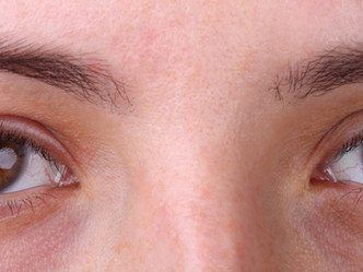 ¿QUE ES LA BLEFARITIS? - Ayudemos a la conservación de la integridad ocular.