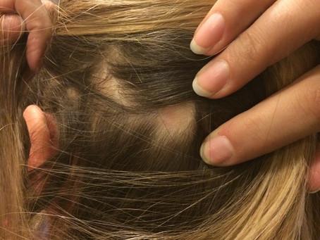 My hair loss Story