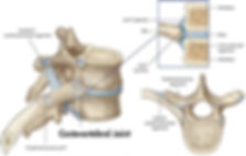 Costovertebral joint sprain.jpg