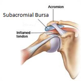 Shoulder Bursitis.png
