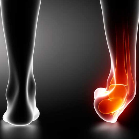 Ankle Sprains - To brace or not to brace after injury (or tape!)