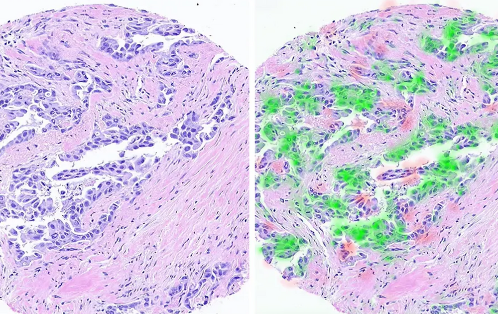 The original scan (left) and the areas where information was extracted (in red and green, right) using the technology developed at the Technion. (photo credit: TECHNION SPOKESPERSON'S OFFICE)