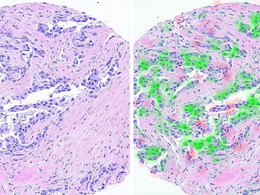 Groundbreaking AI-Based Cancer Treatment Developed by Israeli Researchers