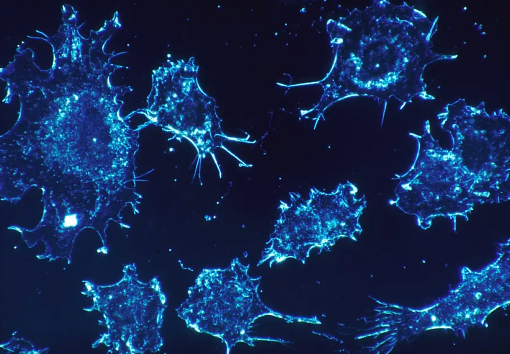 Cancer cells [illustrative]. (photo credit: PIXABAY)