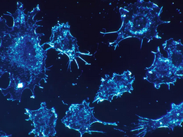 Breakthrough Pancreatic Cancer Treatment Phase III Trial Opens in Israel