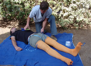The HemaShock device made by Oneg HaKarmel is applied during a demonstration . (photo credit: Courtesy)