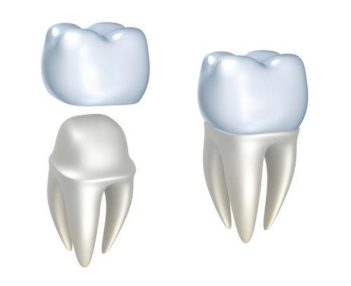 Crowns Dental phuket