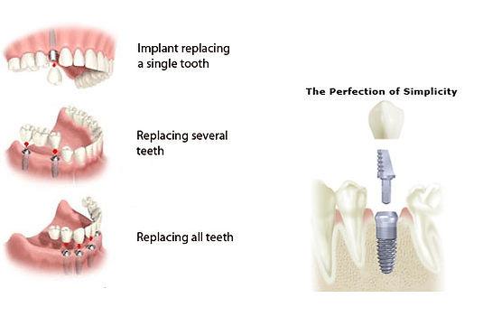 Dental Implants phuket