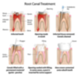 Root canal treatment phuket