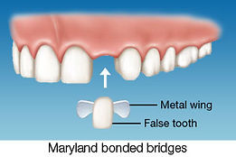 Dental Bridges phuket