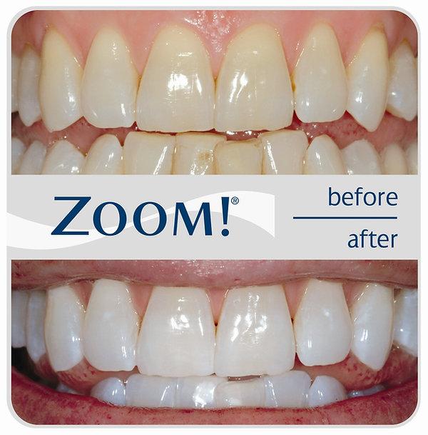 Teeth Whitening phuket