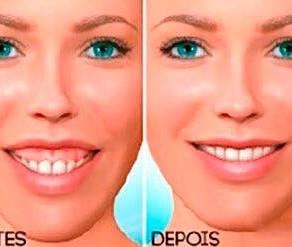 Alterações no perfil facial durante e após a ortodontia