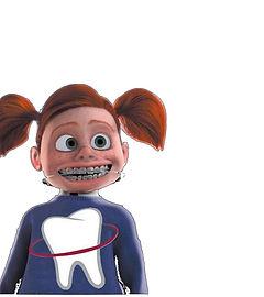 Ortodontia em Sete Lagoas