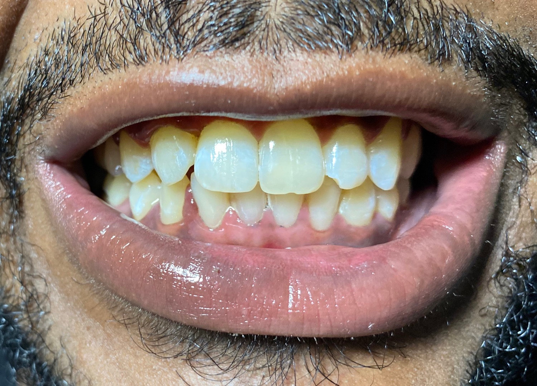 Hour Teeth Whitening