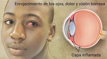 Nuevo tratamiento para uveítis no infecciosa la que produce ceguera.