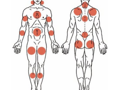 Fibromyalgie et sophrologie.