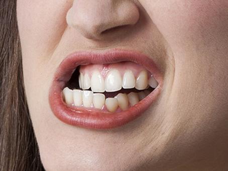La sophrologie et le bruxisme (grincement des dents).