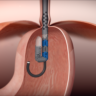 Device-inside-with-endoscope