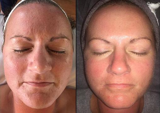 Before-After-Peel-14.jpg