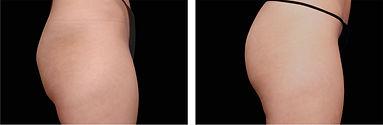 Emsculpt_PIC_Ba-card-female-buttock-049_