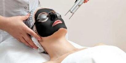 carbon-laser-facial-procedure-300x150.jp