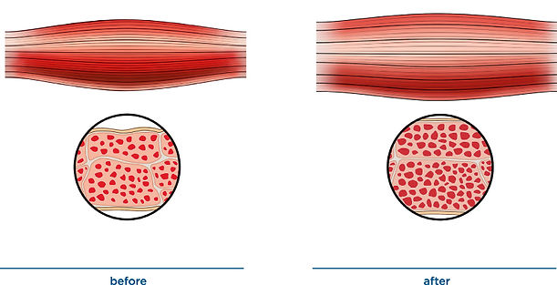 effects-on-muscle-tissue.jpg