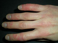 raynauds_with_skin_lesions.jpg