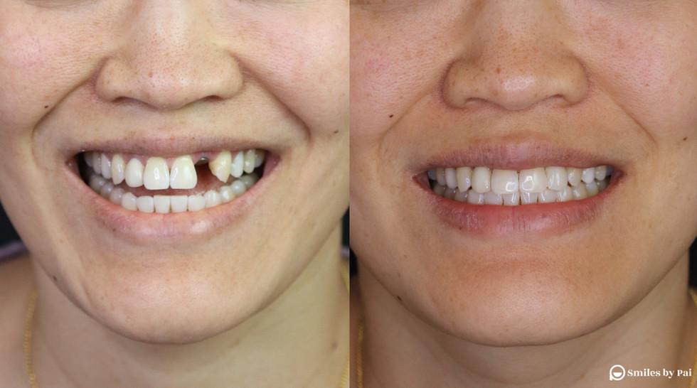 smile makeover_dental implant_3 copy.jpg