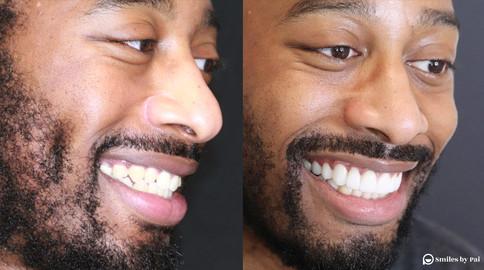 smile makeover_veneers 4.jpeg