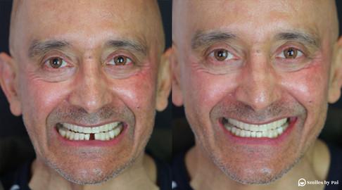 smile makeover_dental implant_5.jpg