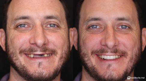smile makeover_dental implant_2.jpg