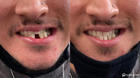 smile makeover_dental implant_4 copy.jpg