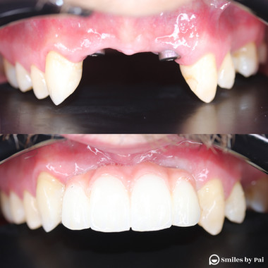 smile makeover_dental implant_before aft