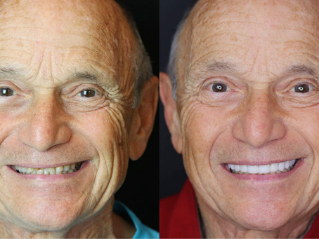 Extreme Smile Makeover: Full Mouth Reconstruction with Nidhi Pai, DDS