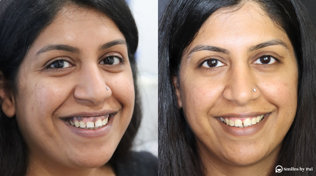 gum-hyperpigmentation.jpg