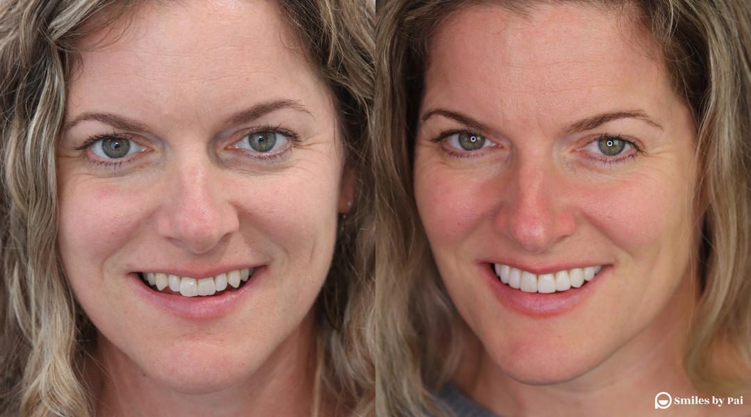 smile makeover_no prep veneers2 copy.jpg