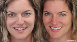 smile makeover_no prep veneers2 copy