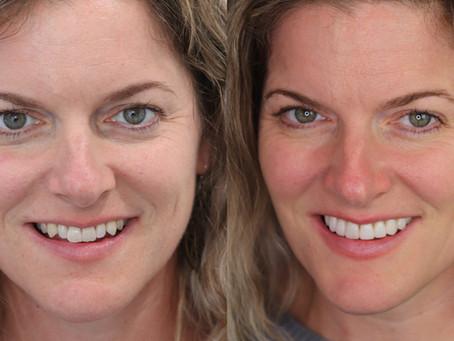 Minimal Prep Veneers - Patient Results