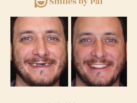 Smile Makeover Case: Dental Implants