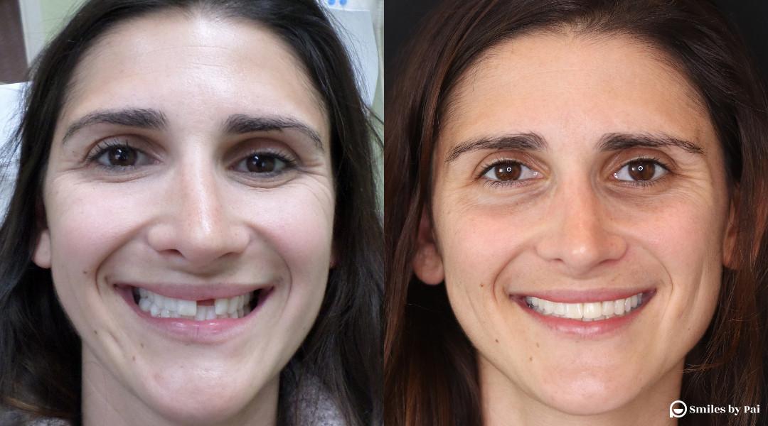 smile makeover_dental implant.jpg