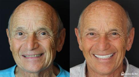 smile makeover_veneers 2.jpeg