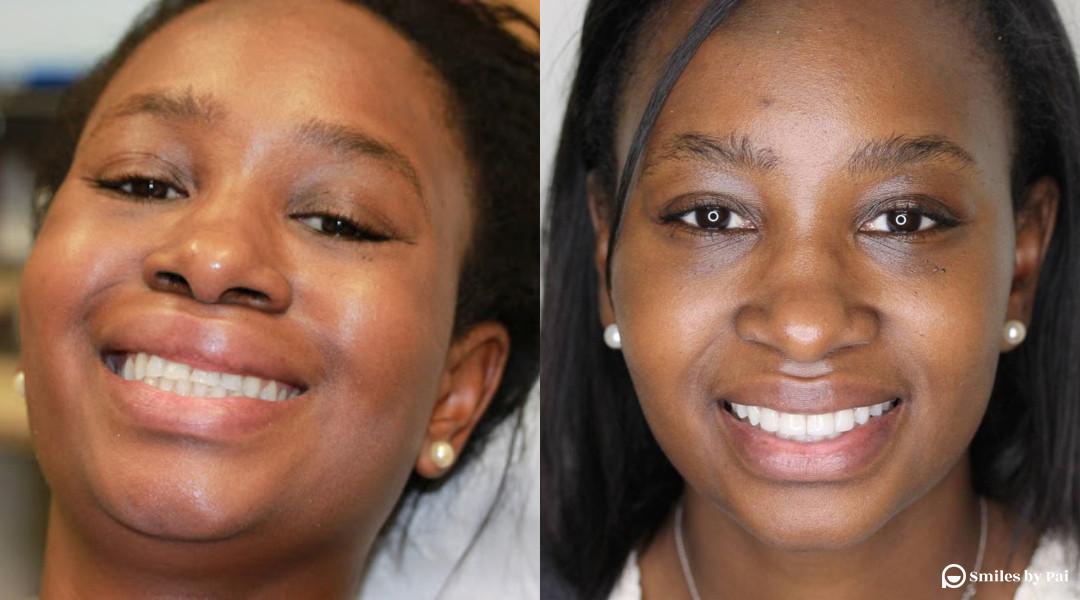 smile makeover_veneers_invisalign_4.jpg