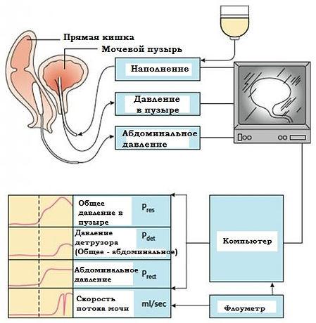 КУДИ Комплексное уродинамическое исследование