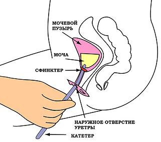Катетеризация женщины периодическая катетеризация