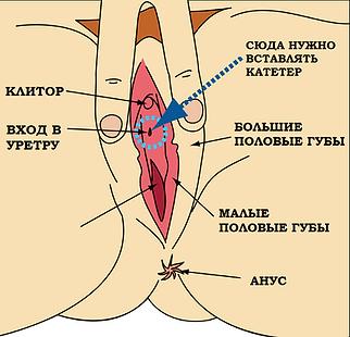 Периодическая катетеризация у женщин