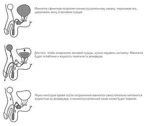 механизм работы искусственного сфинктера мочевого пузыря