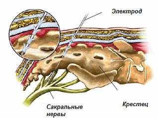 сакральная нейромодуляция