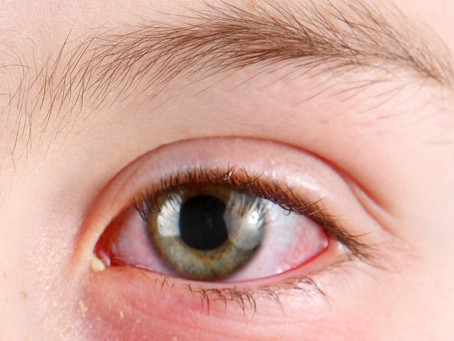 Three things not to miss - The Red Eye